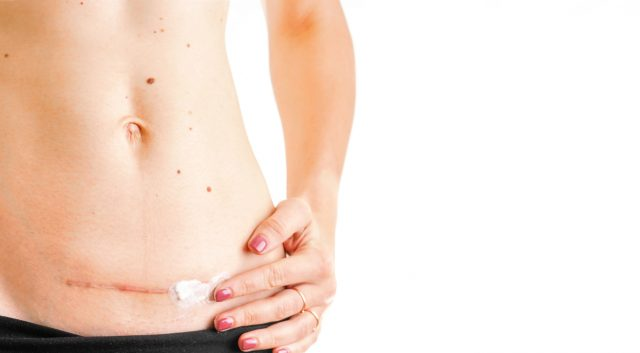 woman belly with scar c Cesarean healing cream medicine isolated white background concept